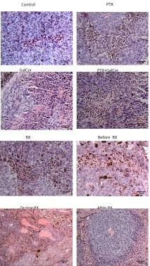 celulas del sistema inmune300.jpg